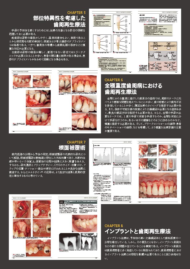 終了]歯周再生療法のフロントランナーが辿りついた到達点とは? – 九州 ...